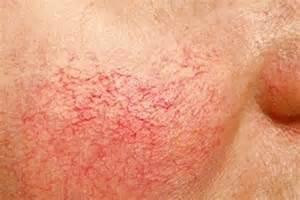 what to do for couporous skin picture 3