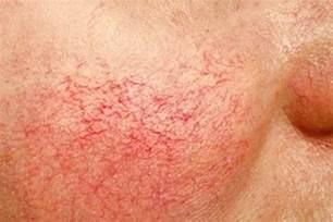 cuperose skin problem picture 6