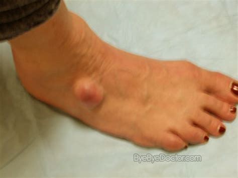 white or red thyme for ganglion cyst picture 13
