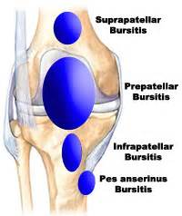 pain relief for suprapatellar joint wffusion picture 12