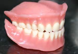 cost of dentures and pulling h picture 13