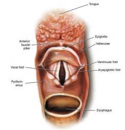 picture of h cavities picture 14