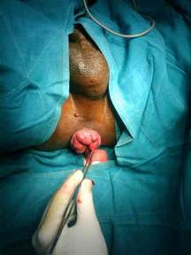 hemorrhoid surgery picture 6