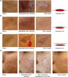 scupltra and subscision treatment for acne scars picture 2