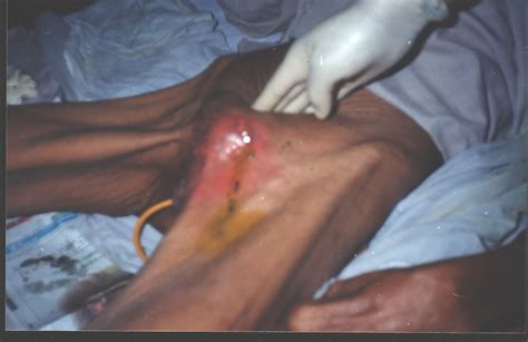 after penectomy picture 1