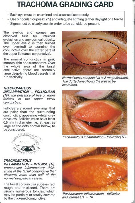 trangkaso symptoms picture 11