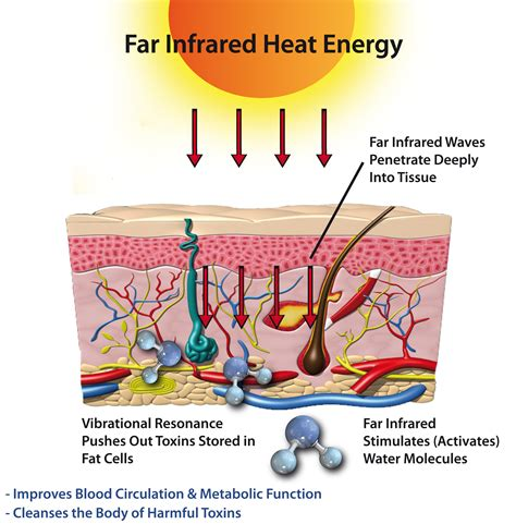 cellulite what is infrared heat picture 2