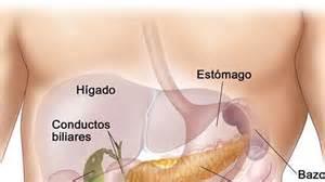 pancreatic divisum diet picture 9