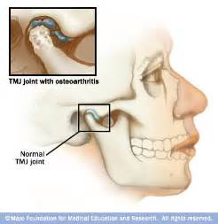 dizziness and joint pain picture 11