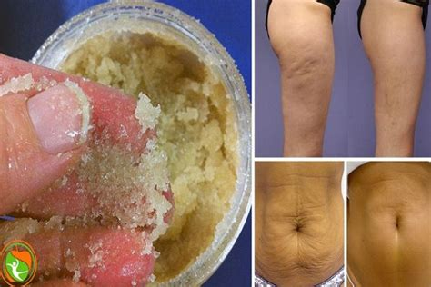 apple cider cure stretch marks picture 11