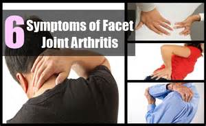 best future treatment for facet joint dysfunction picture 5