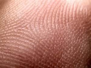 en skin picture 5