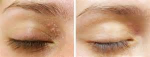 aayurvedic treatment for eyelid wart picture 11