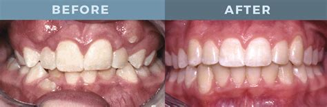 correcting impacted teeth picture 9