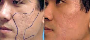 acne scar removal home laser picture 10