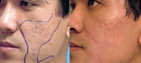 acne treatment laser picture 14