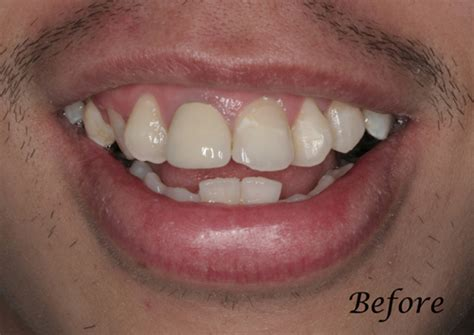 teeth whitening san francisco picture 3