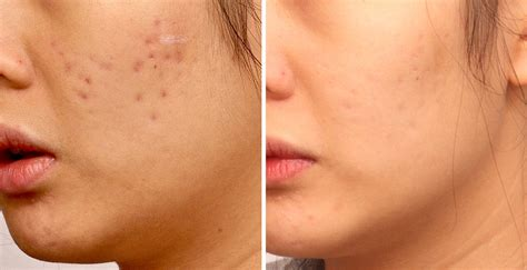 acne scar incision picture 5