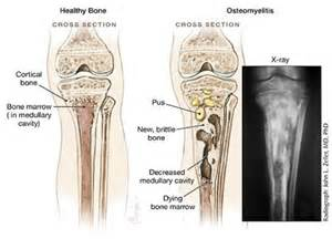 bone joint infection picture 2