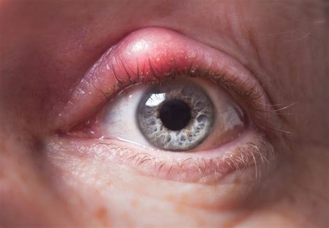 eye bacterial infections picture 3
