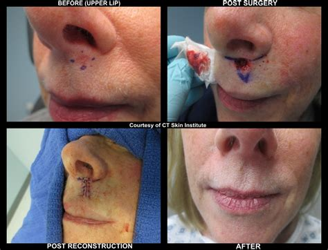 laser stretch mark removal dermatology picture 13