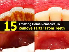 can you whiten teeth with cream of tarter picture 4