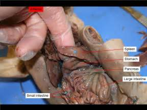 gall bladder sypmtom picture 11