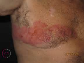herpes clinics picture 17