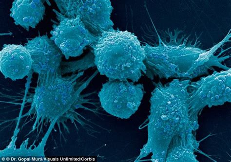 Prostate cancer and psa picture 3