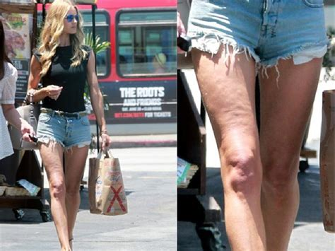 celebs with cellulite picture 6