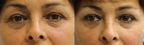 co2 laser acne treatment picture 11