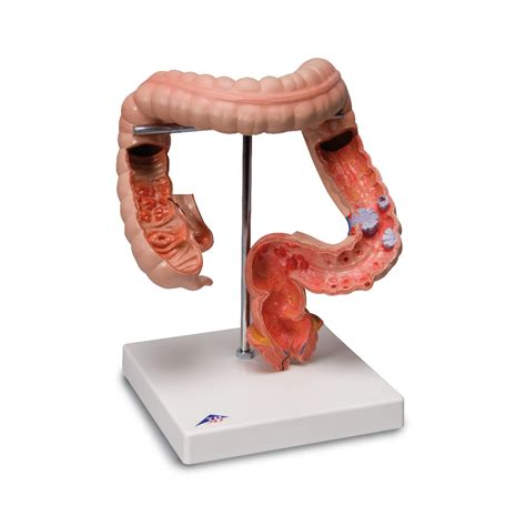 intestinal diseases picture 5