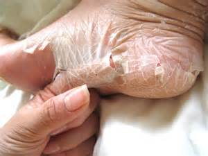 flaky skin on hands picture 1