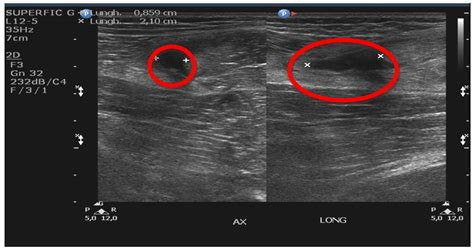 first degree gastrocnemius muscle strain picture 2