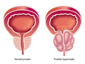 prostatic hypertrophy picture 9