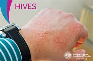 Hive treatment picture 11