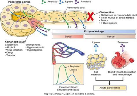 aspirin toxicity pancreas gall bladder picture 11