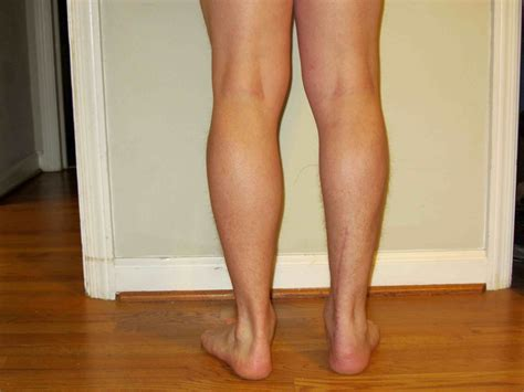 calf muscle lump picture 2
