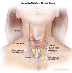 left and right thyroid gland is swollen picture 8