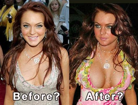actresses and breast augmentation jobs picture 9