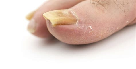 can toe nail fungus goaway picture 11
