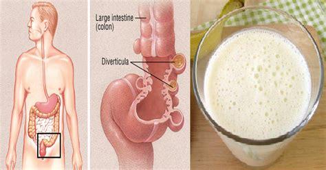 your colon picture 12