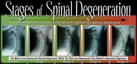 degenrative joint diease in the spine picture 21