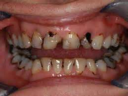 decalcification of teeth picture 11