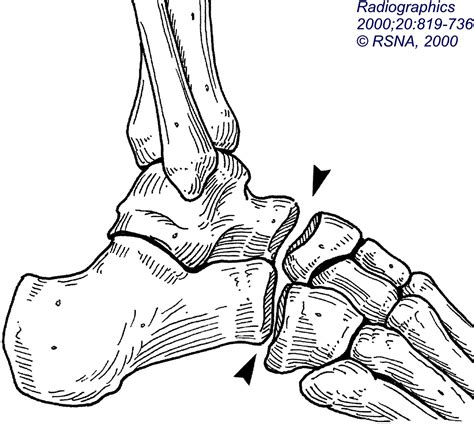 lisfranc joint picture 5