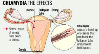 yeast vaginitis common in pregnancy picture 9
