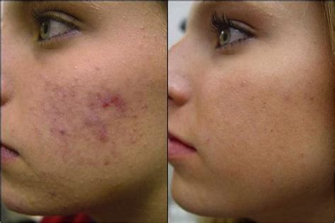 acne scar treatment in sf picture 13