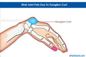 joint and wrist pain picture 6