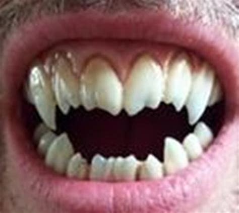 fang teeth picture 19