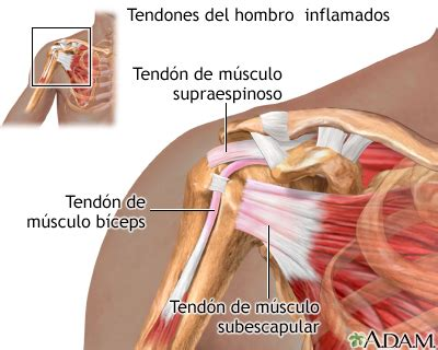 degenerative joint disease of the left shoulder picture 14